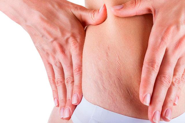 cách trị rạn da khi bị tăng cân nhanh
